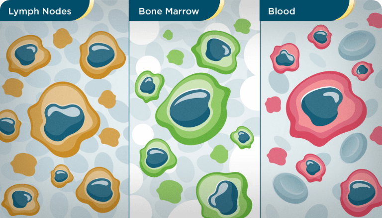Abnormal B cells start to build up in the bone marrow, lymph nodes, and blood, and may also involce other organs, such as the liver and spleen.